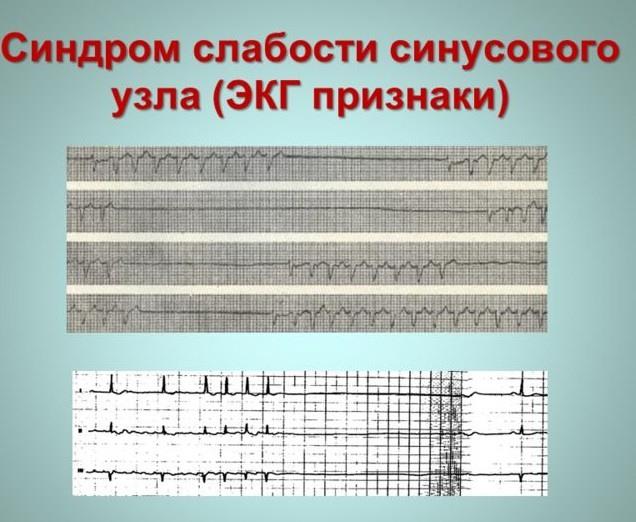 Синдром слабости синусового узла (ЭКГ)