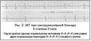 Синоаурикулярная блокада 2 степени