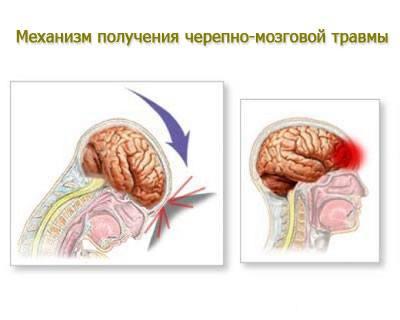 Механизм возникновения черепно-мозговой травмы