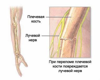 Неврит срединного нерва мкб 10