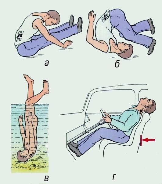 Механизм травм позвоночника